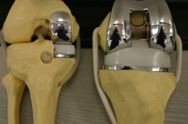 Замена коленного сустава операция как проходит купить крем гель для суставов alezan в спб
